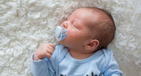 Jerawat Pada Bayi, Mengapa Bisa Terjadi?